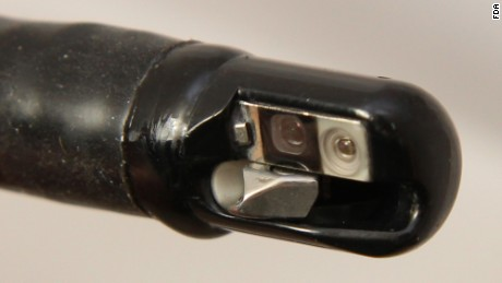 Close-up view of an ERCP endoscope tip
