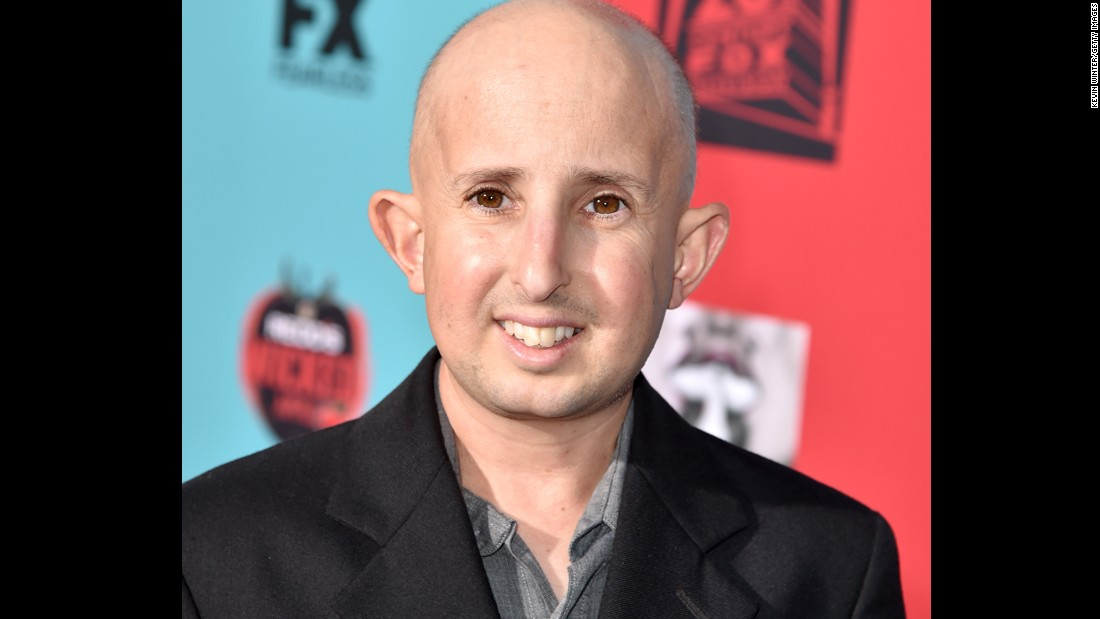 Actor Ben Woolf died on Monday, February 23, after being injured in a car accident on February 19. Woolf was 34.