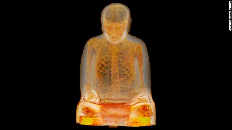 Ecografía revela un monje momificado de hace 1.000 años escondido en una estatua