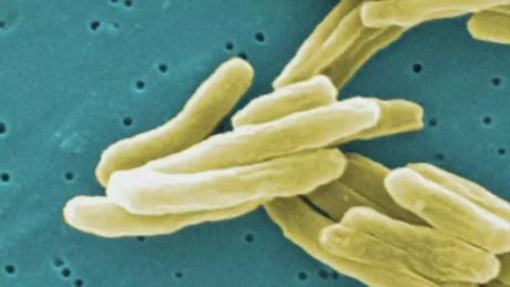 dnt 27 cases tuberculosis Kansas high school_00002624