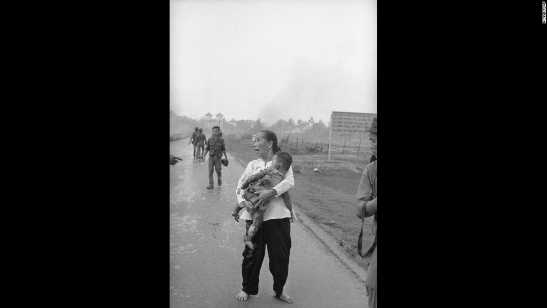 An anguished woman carries her napalm-burned child.