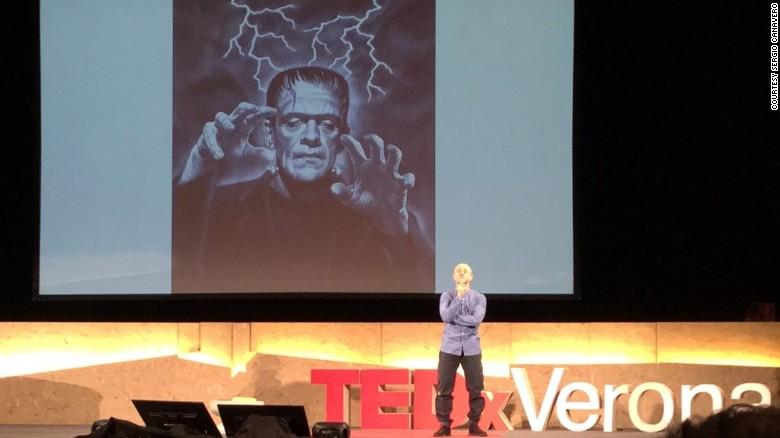 ¿Estamos cerca de los trasplantes de cabezas humanas?