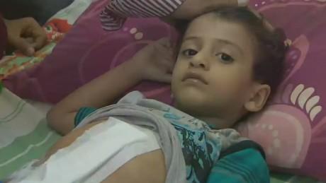 pkg elbagir yemen aden under siege_00011725