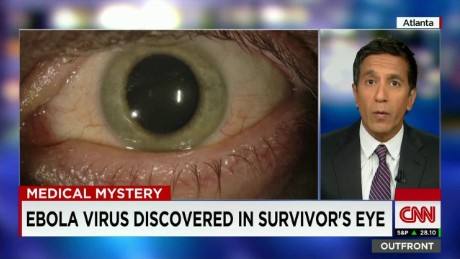 Ebola Eye_00012416
