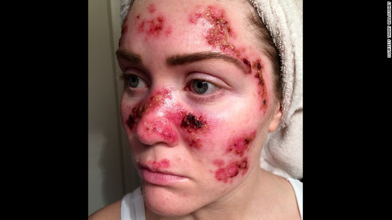 Frequent Tanner Shares Grisly Skin Cancer Selfie [Archive]   The Apricity  Forum: A European Cultural Community