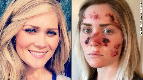 Woman posts skin cancer selfies as warning for tanners