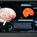 Flex neuroverse