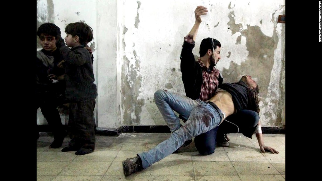 A man gives medical assistance as two wounded children wait nearby at a field hospital in Douma on February 2, 2015.