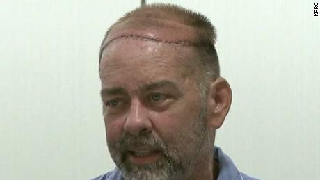 skull transplant texas affil pkg_00004322.jpg