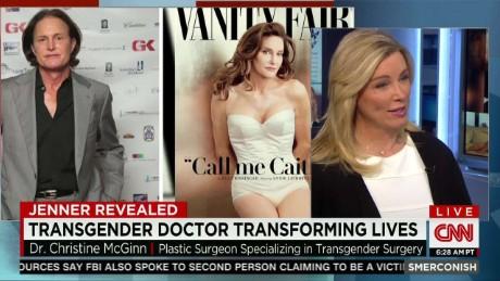 SMR Trangender doctor on Caitlyn Jenner_00015603