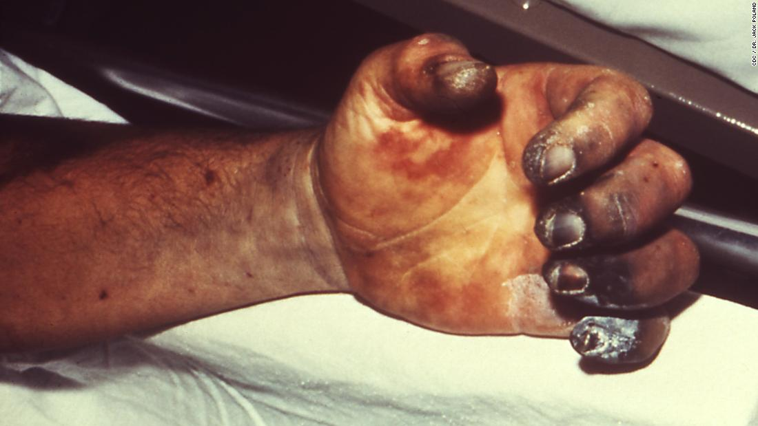 Often thought of as a Medieval disease, the WHO reports 1,000 to 3,000 global cases of plague every year. Pictured, a patient with gangrene and necrosis, caused by plague.<br />
