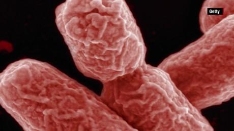 CDC announces 4th superbug case in US patient