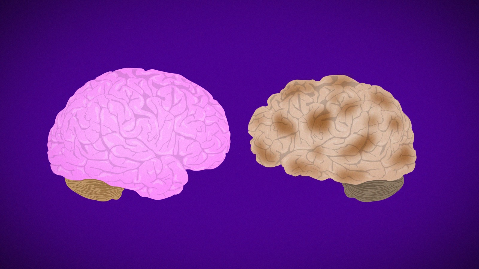 No, Alzheimer's is not contagious