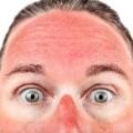 01 gross summer habits sunburn