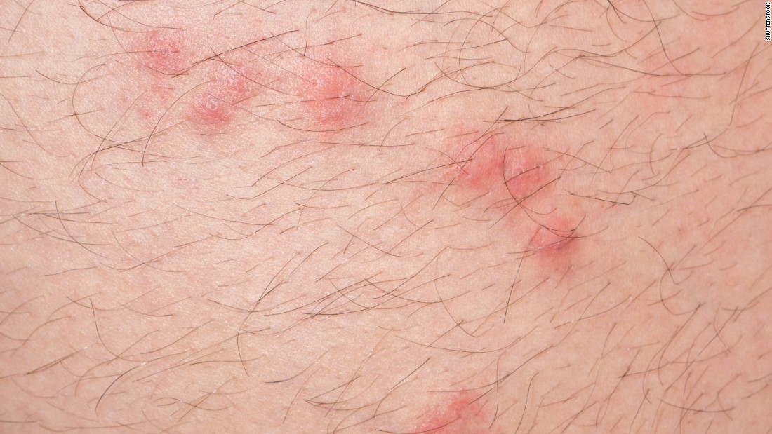 Flea Bite in Adults: Condition, Treatments, and Pictures ...