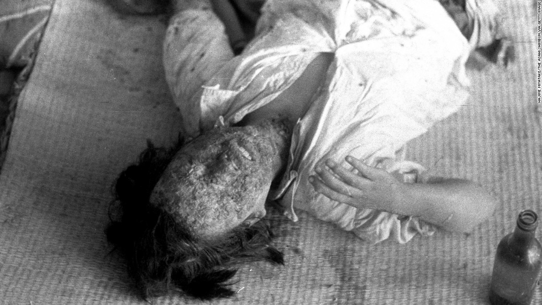 A patient suffering severe radiation burns lies in the Hiroshima Red Cross hospital in August 1945. Many of those who survived the initial blast on August 6 died of severe radiation-related injuries and illnesses.