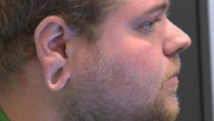 stretched earlobe regret cosmetic surgery pkg_00000904.jpg