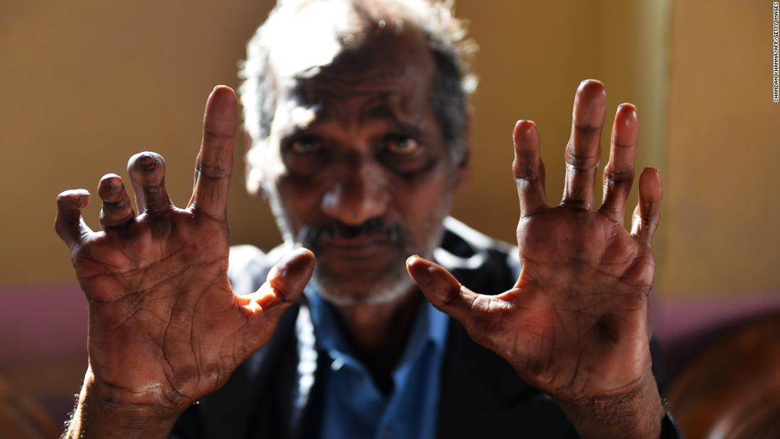 An ancient and disfiguring disease, there were still 216,000 global cases of leprosy in 2013.