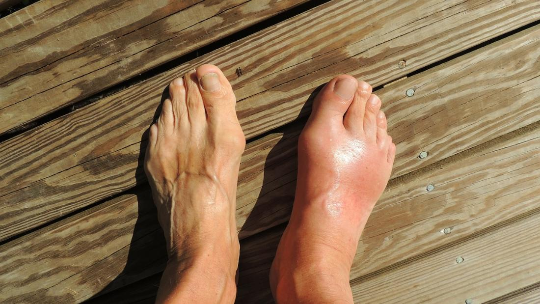 "It was once known as the ""disease of kings"" because of its links to excessive food and alcohol consumption. These days, unhealthy lifestyles are behind an increase in gout in developed countries."
