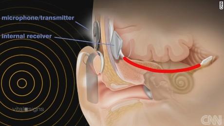 auditory brain implant
