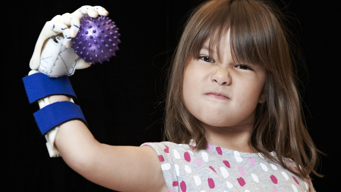 Four-year-old Hailey Dawson's poses with her robo-hand October 30, 2014 at the University of Nevada, Las Vegas. (Aaron Mayes / UNLV Photo Services)