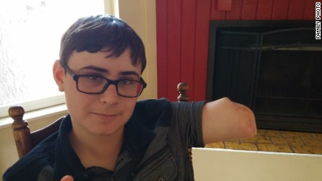 Hunter Treschl was one of two teens who lost their arms in the waters off Oak Island, North Carolina, this summer. His arm was amputated below the shoulder.