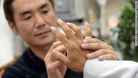 Prosthetics specialist Shintaro Hayashi, left, inspects the silicone finger of a former yakuza member in Tokyo.
