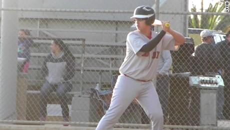 teen loses leg flesh eating bacteria baseball pkg_00003624