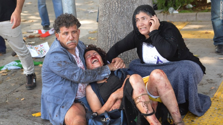 Wounded people wait for help at the site of an explosion in Ankara, Turkey, Saturday, Oct. 10, 2015. Two bomb explosions apparently targeting a peace rally in Turkey's capital Ankara on Saturday has killed over a dozen people, a news agency and witnesses said. The explosions occurred minutes apart near Ankara's train station as people gathered for the rally organized by the country's public sector workers' trade union.