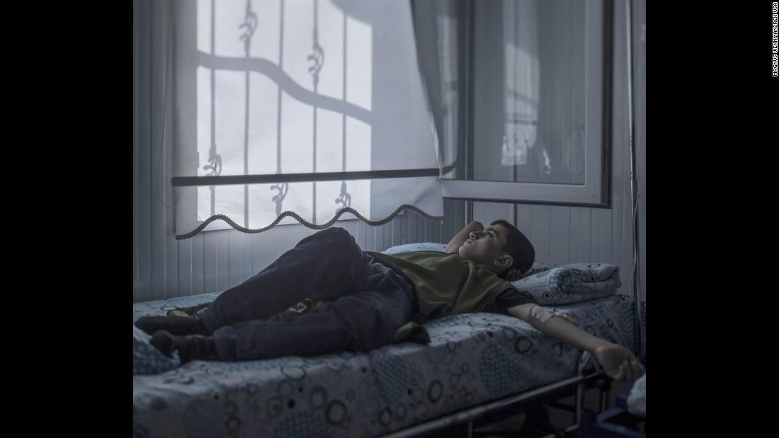"""Mohammed, 13, lies in a hospital bed in Nizip, Turkey. Back home in Aleppo, Syria, he used to enjoy walking around the city looking at houses. Now many of his favorite buildings are gone, blown to pieces. Lying in his bed, Mohammed wonders whether he will ever fulfill his dream of becoming an architect. """"The strangest thing about war is that you get used to feeling scared. I wouldn't have believed that,"""" he said."""