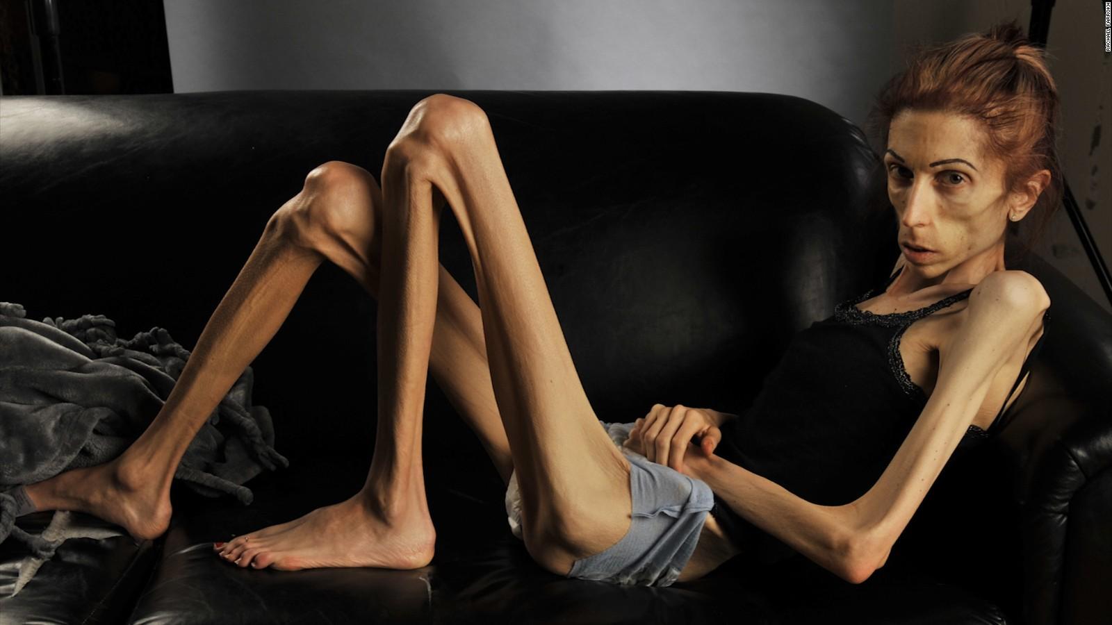 Фото анорексичных девушек 1 фотография