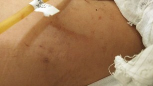 Some of Huang Tanghong's bruises and injuries are pictured.