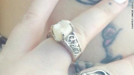 wisdom tooth engagement ring moos pkg erin_00002122.jpg