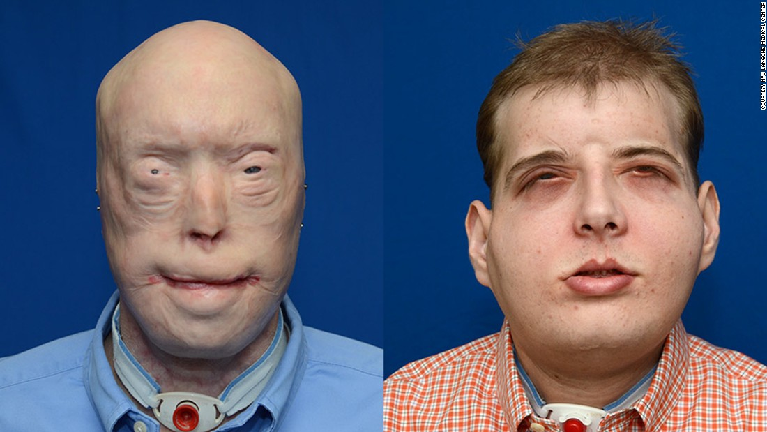 "Patrick Hardison, 41, had <a href=""http://www.cnn.com/2015/11/15/health/face-transplant-firefighter/index.html"">face transplant surgery</a> in August, 2015. The surgery was performed by a plastic surgeon from New York University Langone Medical Center. Hardison was injured 14 years ago while fighting a fire as a volunteer."