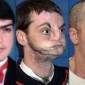 NEW face transplant richard norris