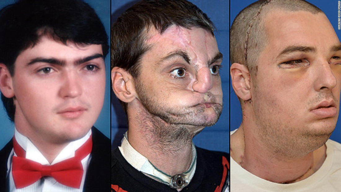 American Richard Norris: left, in high school in 1993; center, after suffering a gunshot injury; right, after face transplant surgery. He was recently featured on the cover of GQ magazine.