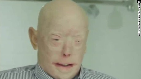 face transplant surgery patient nyu facial plastic orig_00000603.jpg