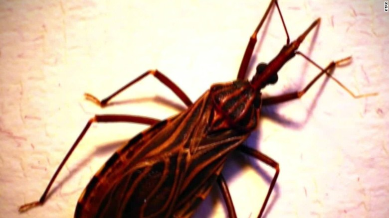 kissing bug Chagas united states pkg_00013319