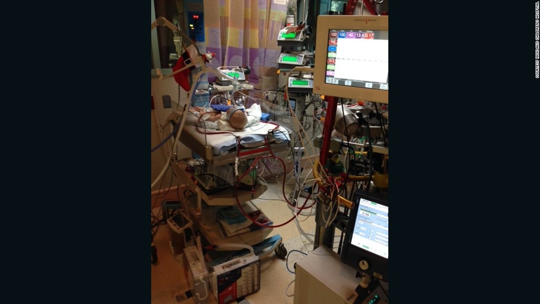 Teegan in the cardiac intensive care unit after her operation.