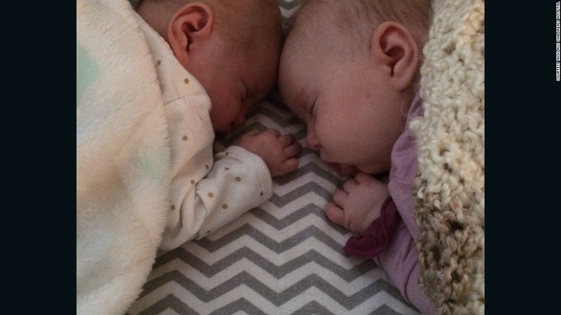 Doctors in Minnesota thought there was no operation available to save Teegan (left) and sent her home to die.