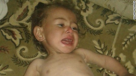 This image of a hungry child was posted on social media by a local resident in the Syrian town of Madaya. CNN cannot independently verify the image.
