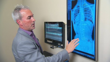 The 411 on Scoliosis_00003512