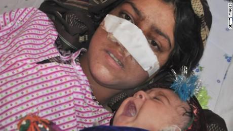 afghan woman nose cut off by husband kinkade pkg_00024505