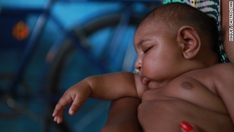 Zika virus linked to birth defect in newborns