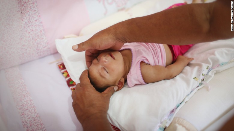 "Alice Vitoria Gomes Bezerra, a 3-month-old baby with microcephaly, is placed in her crib by her father, Joao Batista Bezerra, on Wednesday, January 27, in Recife, Brazil. The neurological disorder has been linked to the Zika virus and results in newborns with small heads and abnormal brain development. The World Health Organization expects the Zika outbreak to spread to <a href=""http://www.cnn.com/2016/01/25/health/who-zika-virus-americas/index.html"" target=""_blank"">almost every country in the Americas.</a>"