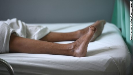 The legs of a patient suffering from Guillain-Barre syndrome recovers in the neurology ward of the Rosales National Hospital in San Salvador on January 27. Researchers are looking into a possible link between Zika and Guillan-Barre syndrome, a rare disorder that causes the body's immune system to turn on its nerves.