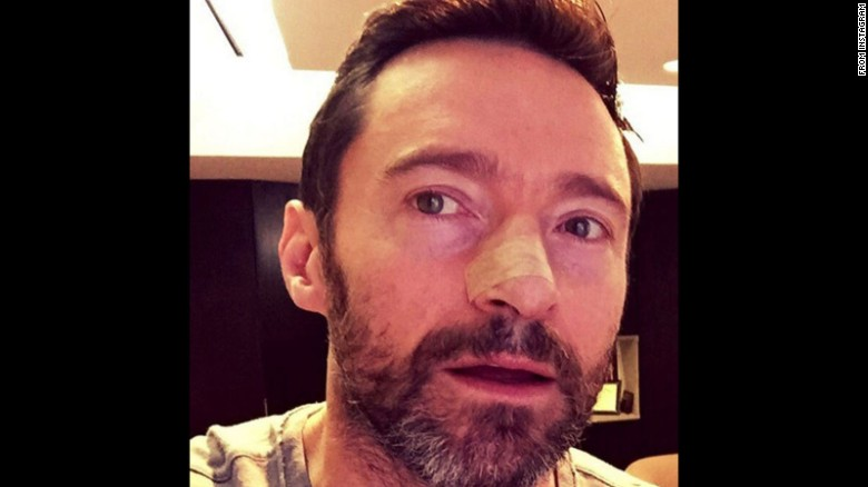 Another skin cancer for actor Hugh Jackman