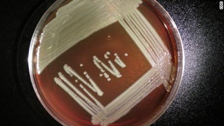 Elizabethkingia anophelis grows on a blood agar plate.