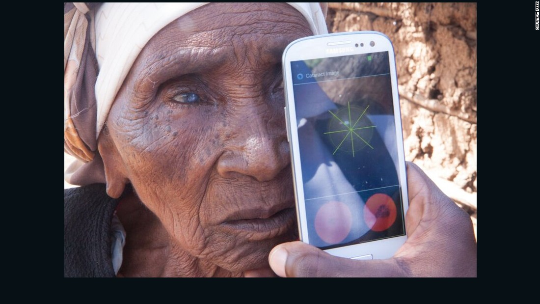There are 39 million blind people in the world, and in low-income countries, 80% of blindness is curable, notes Dr. Andrew Bastawrous, an eye surgeon that helped develop the app.