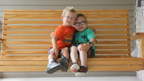 Giovanni and Owen meet for the very first time. Neither has ever met anyone else who shares their rare condition - Schwartz Jampel Syndrome.